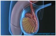 Bệnh viêm tinh hoàn ở nam giới có thể gây vô sinh