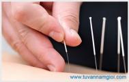 Châm cứu chữa liệt dương tại Tphcm