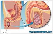 Bệnh ung thư tinh hoàn nguyên nhân và triệu chứng bệnh