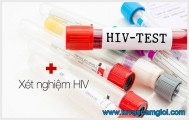 Kết quả xét nghiệm HIV âm tính là gì?
