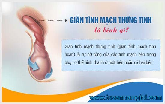 Đau tinh hoàn trái có thể là do giãn tĩnh mạch thừng tinh