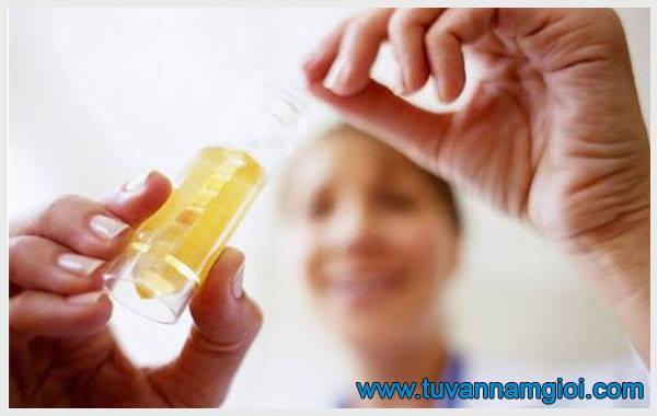 Hình ảnh mẫu nước tiểu có tinh trùng