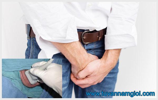 Giãn tĩnh mạch thừng tinh tái phát thường kèm theo các cơn đau