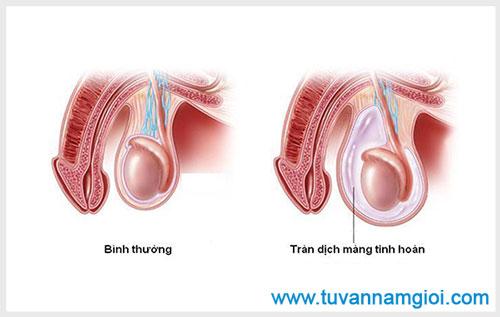 Nguyên nhân gây tràn dịch màng tinh hoàn