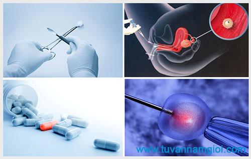 Quy trình khám và điều trị vô sinh nam